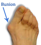 A podiatrist can treat bunions with surgery