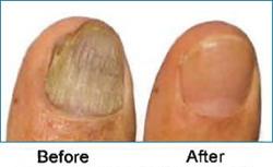 laser-toenails