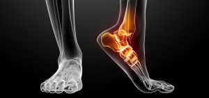 Pain at the back of your ankle, above your heel, is related to the achilles tendon