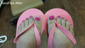 Safe pedicures and fungal nail treatments give nails you can show off anywhere