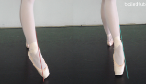 correct sickled feet to avoid dance injury